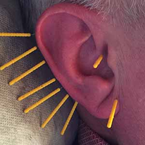 akupunktur rokavvanjning